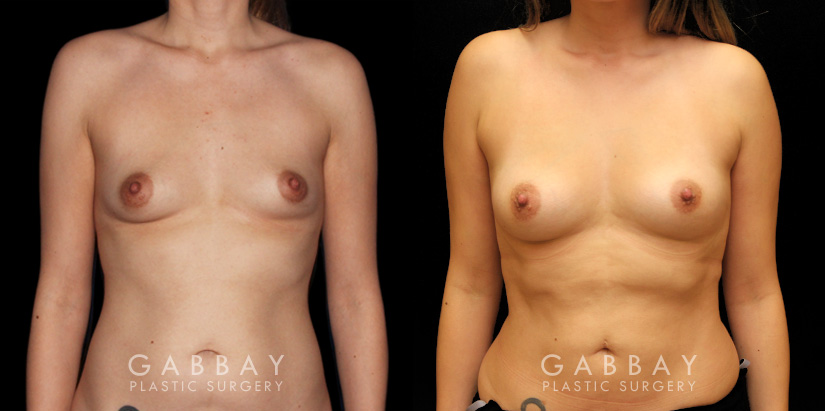 Patient 01 Front View Breast Fat Grafting Gabbay Plastic Surgery