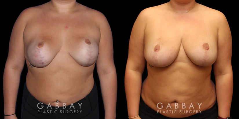 Patient 02 Front View Breast Fat Grafting Gabbay Plastic Surgery