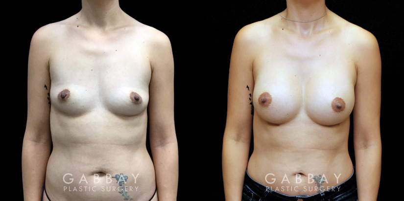 Patient 03 Front View Breast Augmentation Silicone Implants Gabbay Plastic Surgery