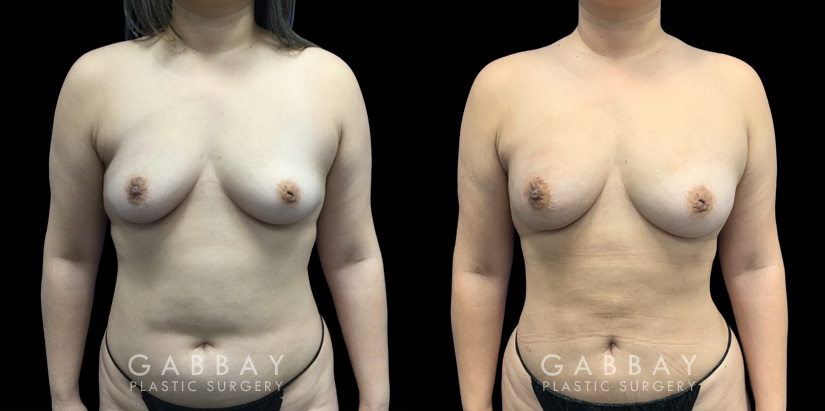 Patient 05 Front View Breast Fat Grafting Gabbay Plastic Surgery