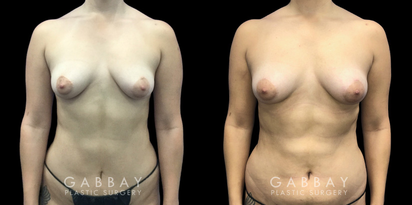 Patient 09 Front View Breast Fat Grafting Gabbay Plastic Surgery