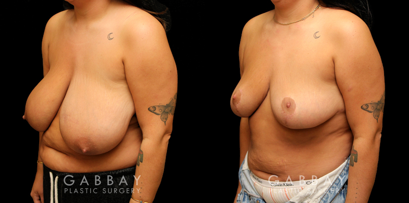 Patient 02 3/4th Left Side View Breast Reduction with Lift Gabbay Plastic Surgery