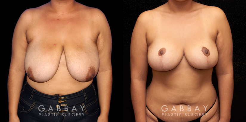Patient 03 Front View Mastopexy Gabbay Plastic Surgery