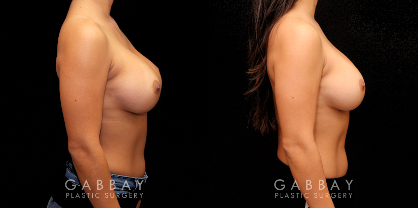 Patient 02 Right Side View Breast Revision Gabbay Plastic Surgery