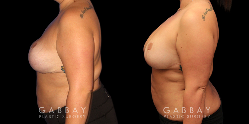 Patient 03 Left Side View Revision Breast Reduction, Revision Wide Mastopext, Belladerm Gabbay Plastic Surgery