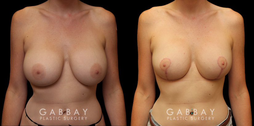 Patient 04 Front View Breast Augmentation Silicone & Lift Implants Gabbay Plastic Surgery