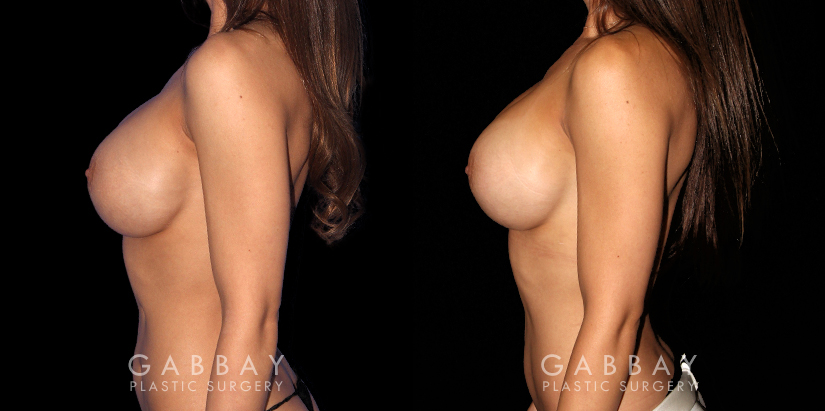 Patient 05 Left Side View R&R of Breast Implants, Scar Rev to 4 Scars, Hernia Repair Gabbay Plastic Surgery