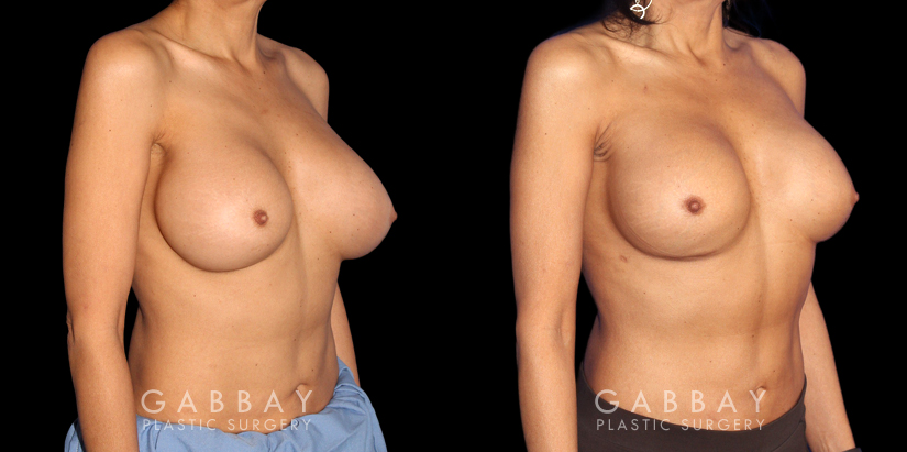 Patient 07 3/4th Right Side View Breast Revision Gabbay Plastic Surgery