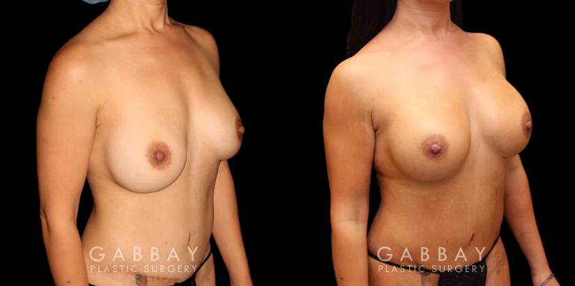 Patient 08 3/4th Right Side View R&R Silicone, Capsuloraphy, Pubis Lift, Scar Revision Gabbay Plastic Surgery