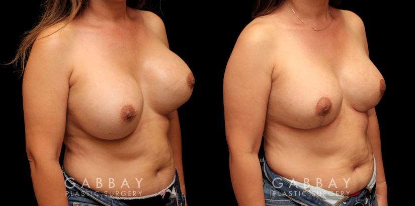 Patient 10 3/4th Right Side View Removal and Replacement with Lift Silicone Implants Gabbay Plastic Surgery