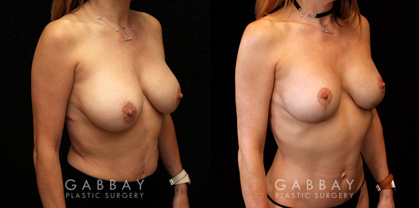Patient 11 3/4th Right Side View Implant Removal and Lift Gabbay Plastic Surgery