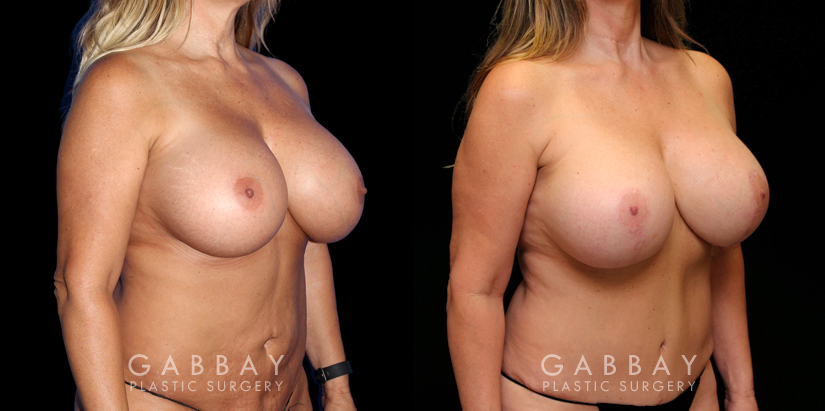 Patient 14 3/4th Right Side View Abdominoplasty Gabbay Plastic Surgery