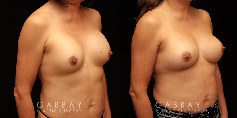 Patient 16 3/4th Right Side View Removal and Replacement Gabbay Plastic Surgery