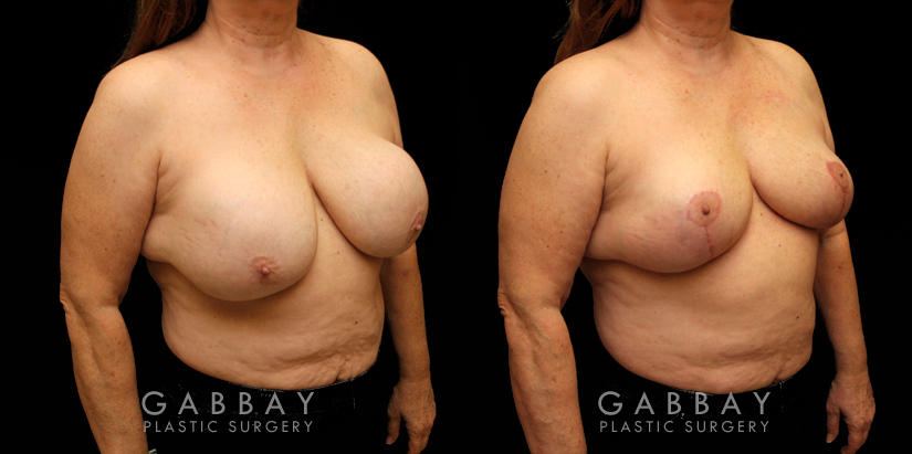 Patient 17 3/4th Right Side View Implant Removal and Lift Gabbay Plastic Surgery