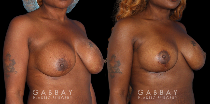 Patient 18 3/4th Right Side View Breast Revision Gabbay Plastic Surgery