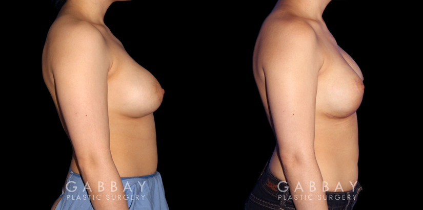 Patient 20 Right Side View Breast Augmentation-Remove and Replace Saline & Full Lift Gabbay Plastic Surgery