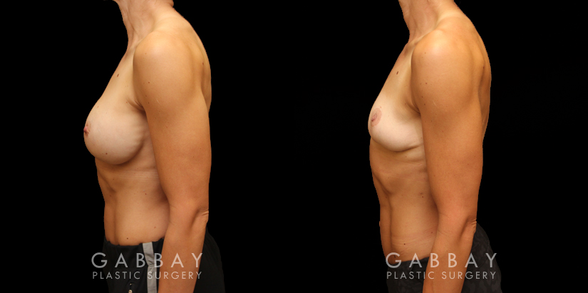 Patient 03 Left Side View Implant Removal/Mastopexy/Auto Augmentation Gabbay Plastic Surgery