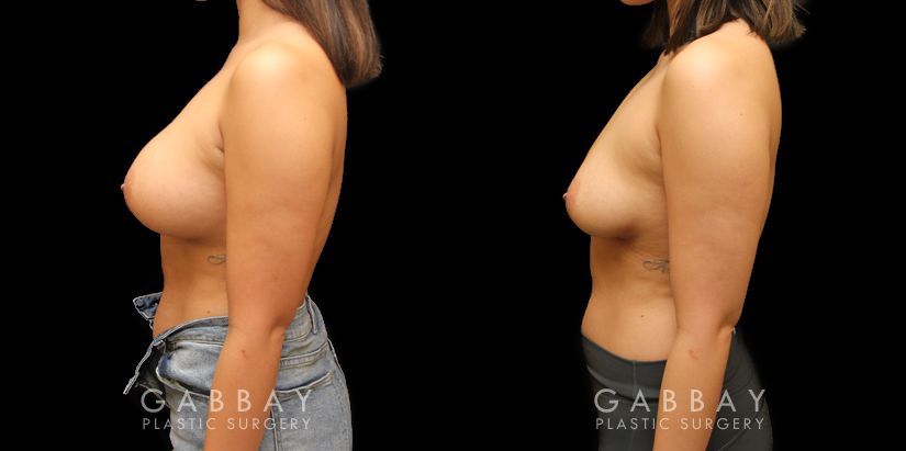 Patient 08 Left Side View Implant Removal and Lift Gabbay Plastic Surgery