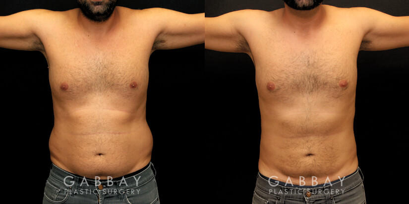 Patient 01 Front View Liposuction and J Plasma to Full Abdomen Gabbay Plastic Surgery