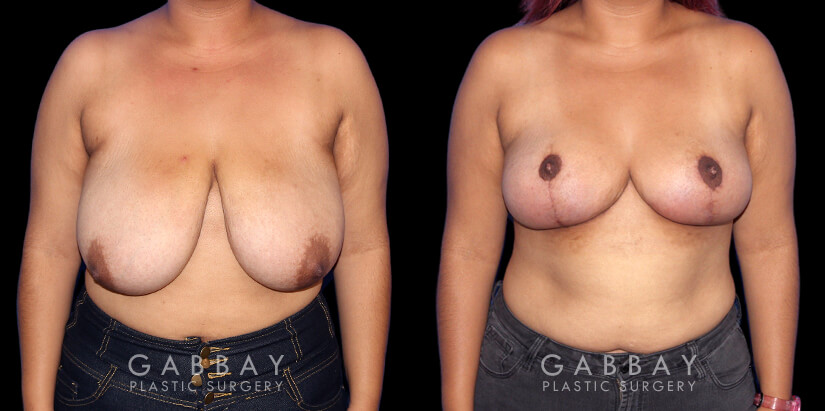 Patient 01 Front View Breast Mastopexy Gabbay Plastic Surgery