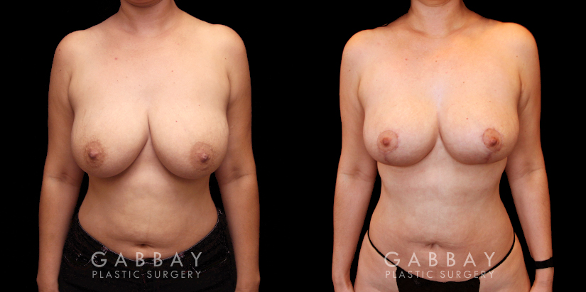 Patient 04 Front View Breast Lift and Auto Aug Gabbay Plastic Surgery