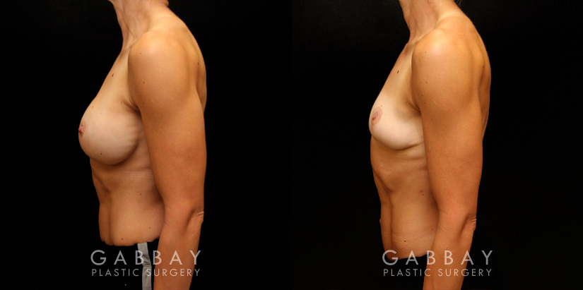 Patient 05 Left Side View Implant Removal/Mastopexy/Auto Augmentation Gabbay Plastic Surgery