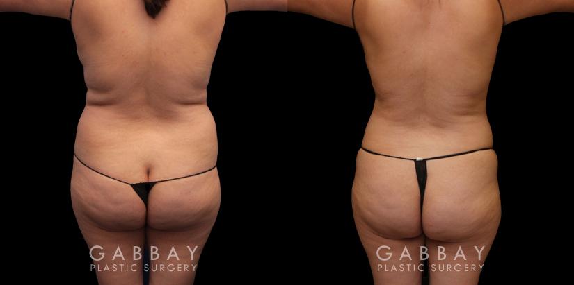 Patient 05 Back View Abdomen Lipo Gabbay Plastic Surgery