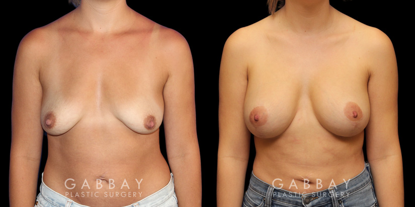 Patient 05 Front View Breast Augmentation w/ Mastopexy - Silicone Gabbay Plastic Surgery