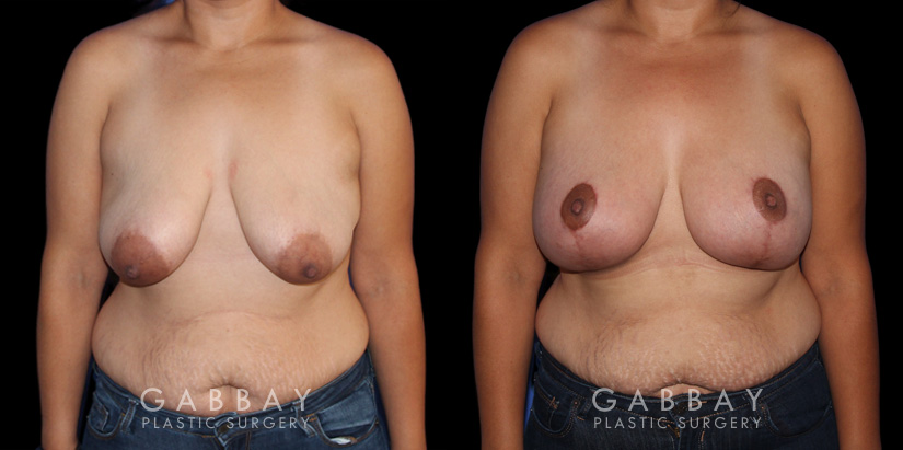 Patient 06 Front View Breast Augmentation - Silicone, Mastopexy Gabbay Plastic Surgery