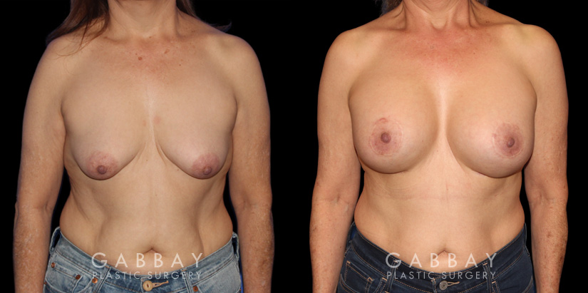 Patient 16 Front View Breast Augmentation w/ Mastopexy - Silicone Gabbay Plastic Surgery