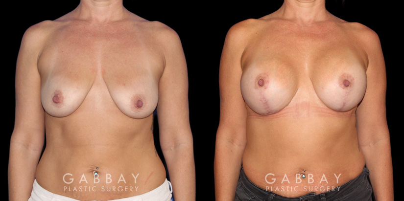 Patient 17 Front View Wise Mastopexy with Silicone Breast Implants Gabbay Plastic Surgery
