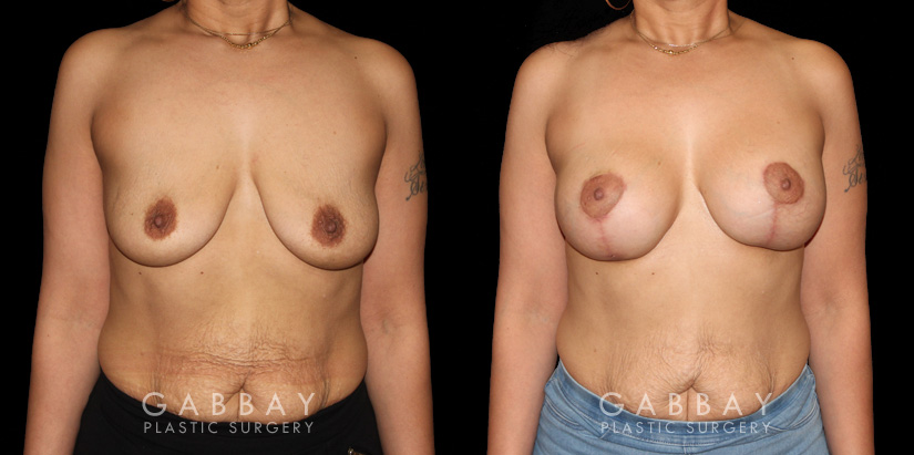 Patient 18 Front View Breast Augmentation - Silicone & Lift Gabbay Plastic Surgery