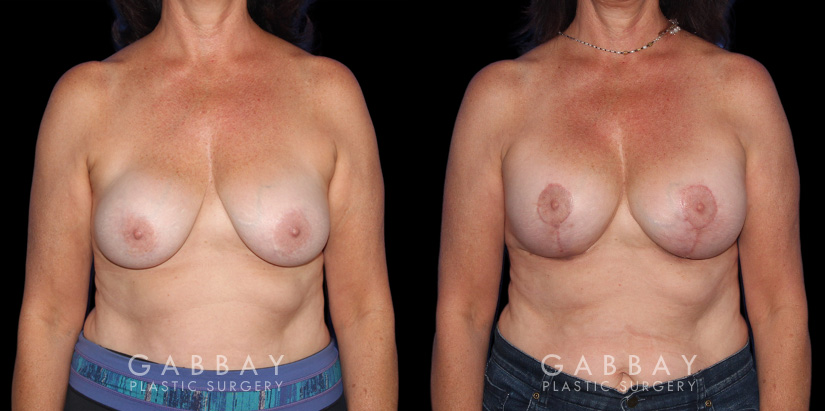 Patient 22 Front View R&R + Breast Lift Gabbay Plastic Surgery