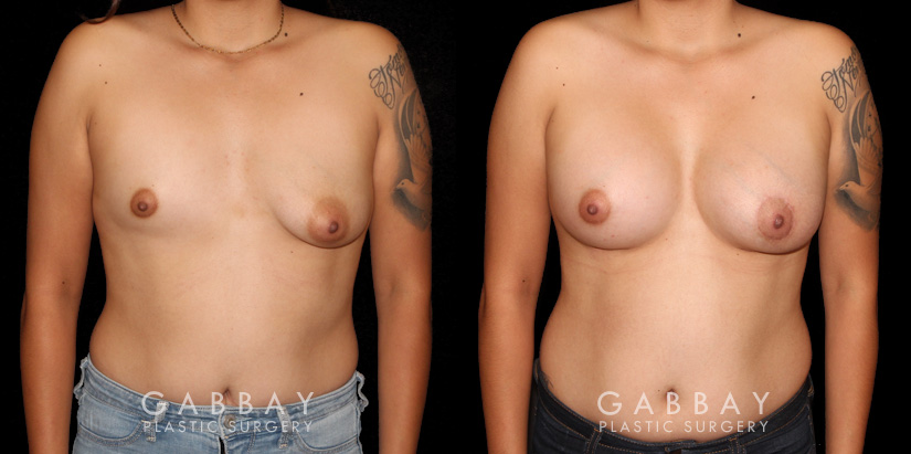 Patient 13 Front View Augpexy Gabbay Plastic Surgery