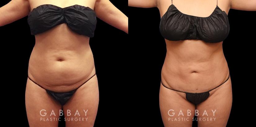 Patient 15 Front View Liposuction Back Bra Roll Gabbay Plastic Surgery