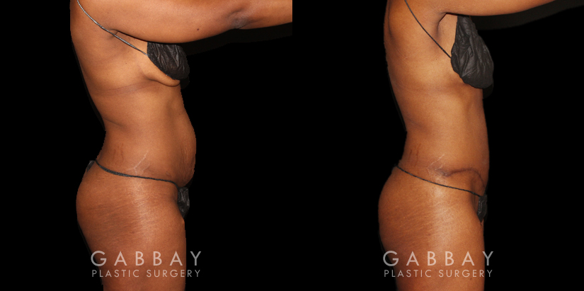 Patient 16 Right Side View Tummy Tuck and Hernia Repair Gabbay Plastic Surgery