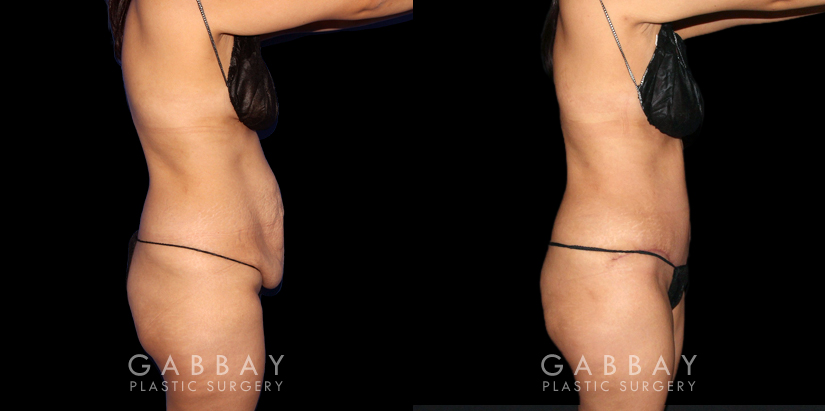 Patient 18 Right Side View Abdominoplasty, Lipo to Waist and Arms Gabbay Plastic Surgery