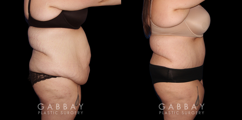 Patient 20 Right Side View Abdominoplasty Gabbay Plastic Surgery