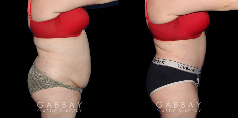 Patient 21 Right Side View Liposuction to Abdomen and Waist Gabbay Plastic Surgery