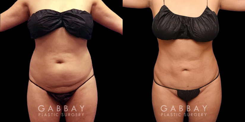 Patient 10 Front View Abdomen Lipo Gabbay Plastic Surgery
