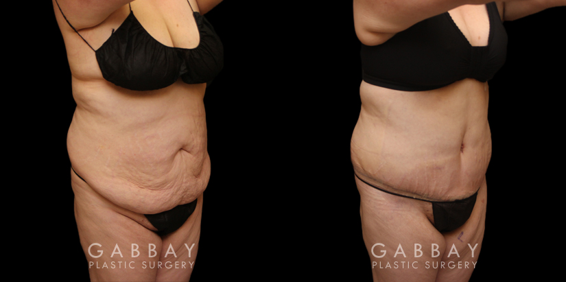 Patient 22 3/4th Right Side View Tummy Tuck and Breast Lift Gabbay Plastic Surgery