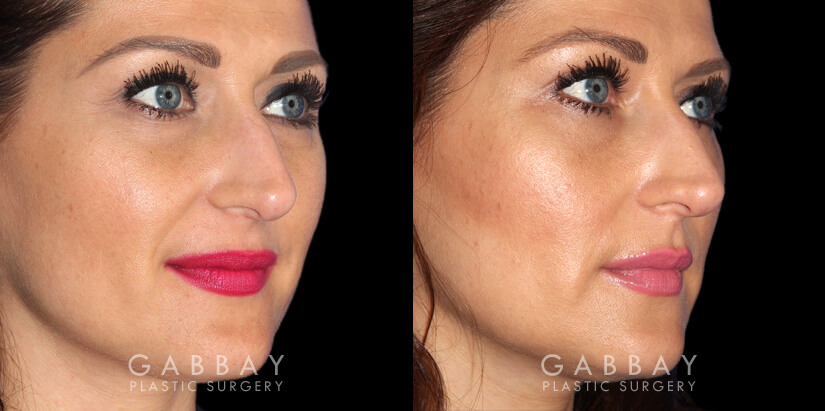 Patient 01 3/4th Right Side View Upper Eyelid Blepharoplasty with Fat Transfer to Face Gabbay Plastic Surgery