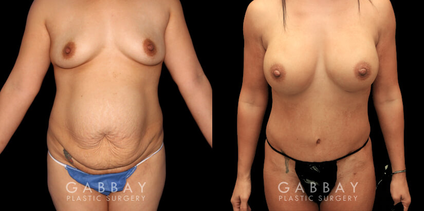 Patient 01 Front View Mommy Makeover Gabbay Plastic Surgery