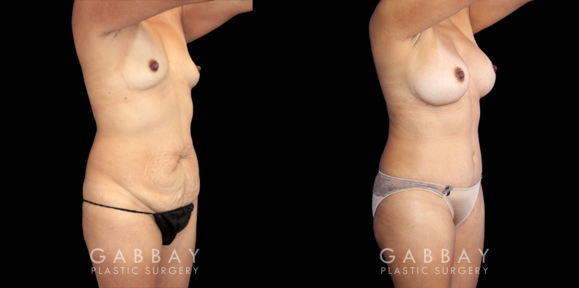 Patient 03 3/4th Right Side View Augmentation Silicone, Abdominoplasty, Flank Liposuction Gabbay Plastic Surgery