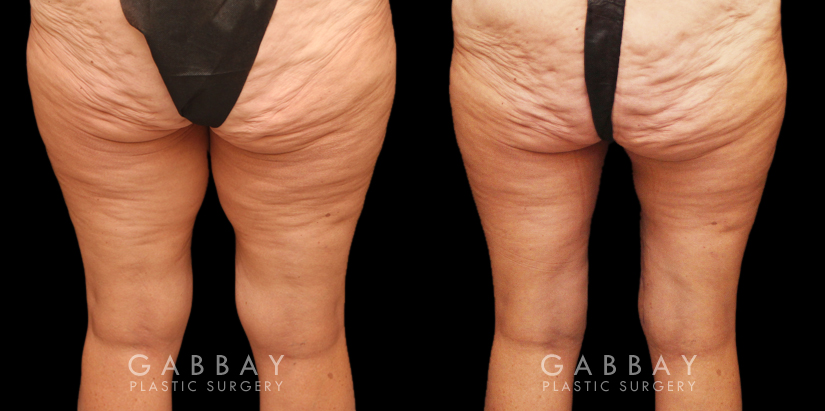 Patient 02 Back View Thighplasty and Knee Liposuction Gabbay Plastic Surgery