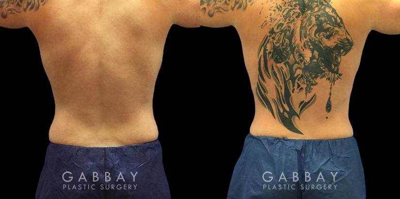 Patient 04 Back View Lipo Male Gabbay Plastic Surgery