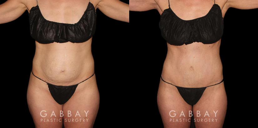 Patient 03 Front View Tummy Tuck Gabbay Plastic Surgery