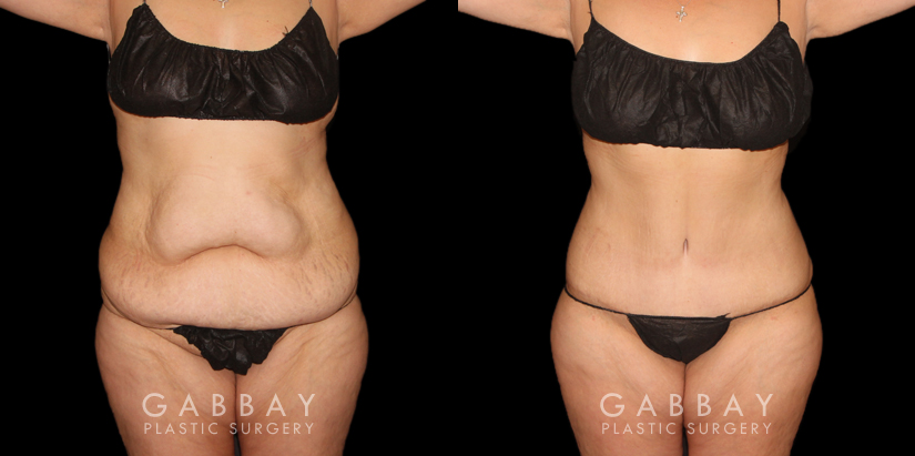 Patient 04 Front View Tummy Tuck with Lipo Gabbay Plastic Surgery