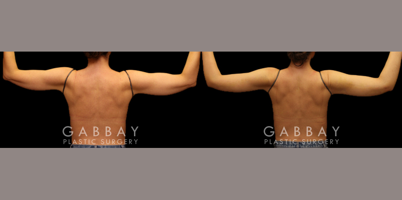 Patient 01 Back View Liposuction to Arms with J Plasma Gabbay Plastic Surgery
