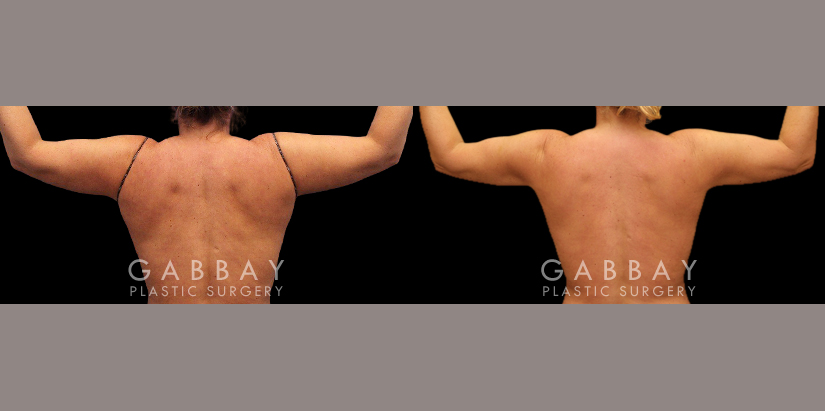 Patient 03 Back View Lipo Arms and Back Bra Roll Gabbay Plastic Surgery